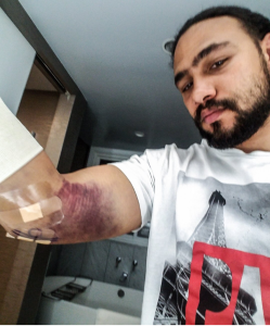 KeithThurman_elbow